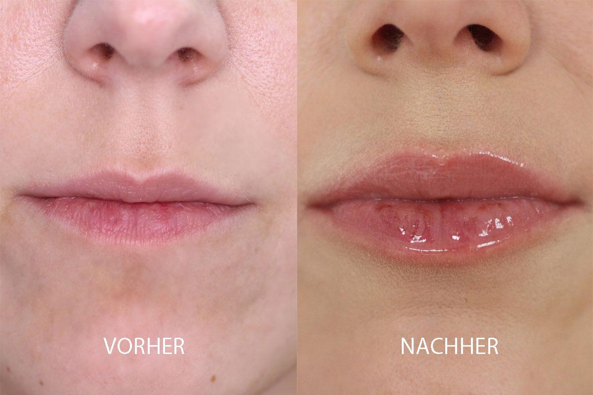 Wunderkiss-Vorher-Nachher58c938e889d70